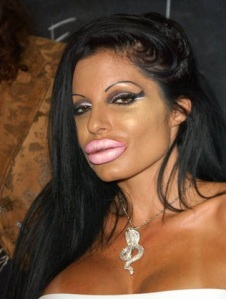 Lip Augmentation Awful Plastic Surgery : Celebrity cosmetic surgery : juvederm : restylane : silicone
