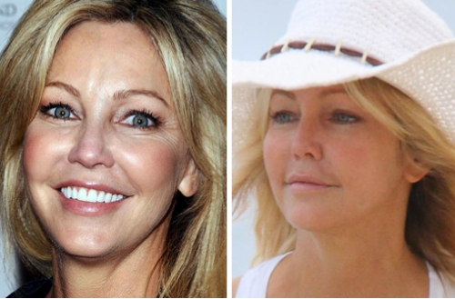 Heather Locklear, entertainment, celebrities, beauty, cosmetic surgery, juvederm, botox