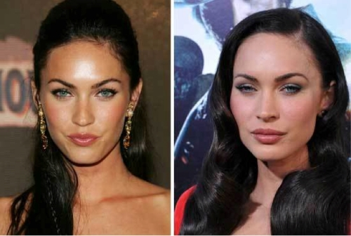 Megan Fox plastic surgery, Megan Fox looks like Angelina Jolie, Megan Fox Cheek augmentation, celebrity plastic surgery, celebrity cosmetic surgery