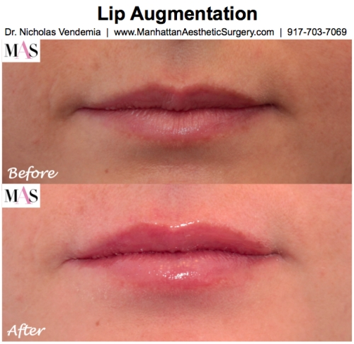 Lip Augmentation by NYC Plastic Surgeon Dr Nicholas Vendemia of MAS | Manhattan Aesthetic Surgery | 917-703-7069