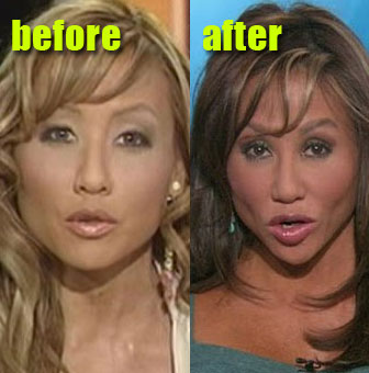 Mia Lee lip injections, bad lip injections, lip implants, celebrity cosmetic surgery, celebrity plastic surgery