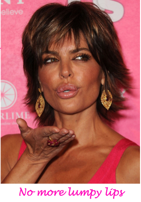 lisa rinna lip augmentation, lisa rinna lip surgery, lisa rinna plastic surgery, celebrity plastic surgery, celebrity gossip, MAS, Manhattan Aesthetic Surgery, Nicholas Vendemia
