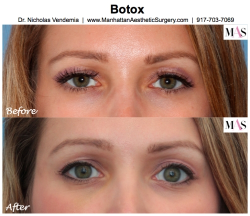 Botox New York City, Botox Manhattan, Juvederm, Restylane, Radiesse, MAS, Manhattan Aesthetic Surgery, Dr Nicholas Vendemia