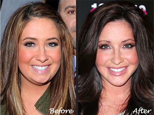 Bristol Palin Plastic Surgery, Jaw Contouring with Botox, Jaw Contouring with Fillers, Radiesse for Jaw Contouring, Get Better Jaw Definition, Neck Lift with New York Plastic Surgeon Dr. Nicholas Vendemia of MAS