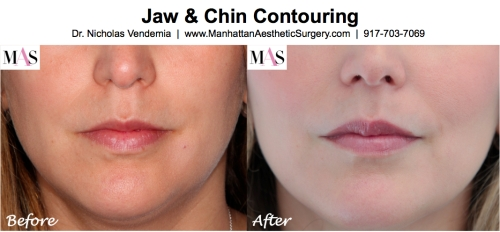 Chin Implant by New York Plastic Surgeon Dr. Nicholas Vendemia of MAS | 917-703-7069