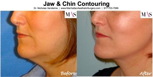 Neck Liposuction by New York Plastic Surgeon Dr. Nicholas Vendemia of MAS | 917-703-7069