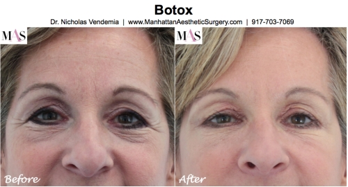 Botox by New York Plastic Surgeon Dr Nicholas Vendemia of MAS | 917-703-7069