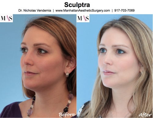 Before and After Sculptra Fillers New York Plastic Surgeon Dr Nicholas Vendemia of MAS | 917-703-7069, Sculptra, Juvederm, Radiesse, Restylane, Plastic Surgery, Plastic Surgeon, NY Plastic Surgeon