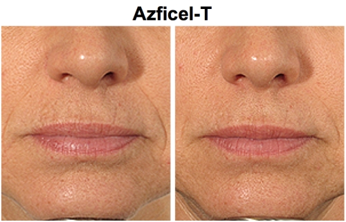 Azficel T la Viv, Juvederm, Restylane, Radiesse, Sculptra, New York Plastic Surgeon Dr Nicholas Vendemia of MAS | 917-703-7069