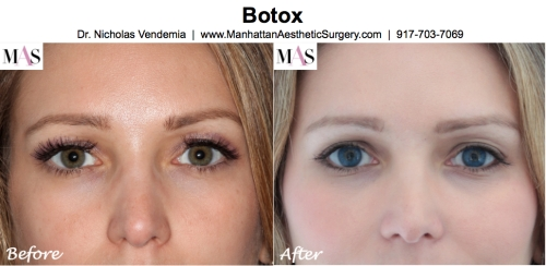 Before and After Botox by New York Plastic Surgeon Dr Nicholas Vendemia of MAS | 917-703-7069
