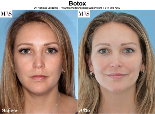 Before and After Botox by NYC Plastic Surgeon Dr Nicholas Vendemia of MAS | 917-703-7069