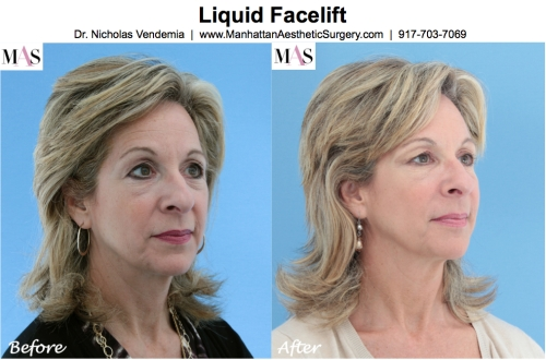 Liquid Facelift Botox Juvederm Restylane Radiesse Sculptra by New York Plastic Surgeon Dr Nicholas Vendemia of MAS | 917-703-7069