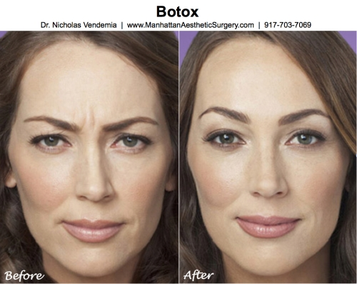 Botox by Manhattan Plastic Surgeon Dr Nicholas Vendemia of MAS | Manhattan Aesthetic Surgery
