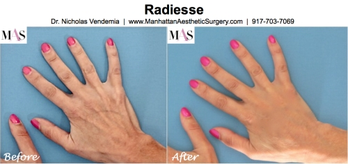 Hand Rejuvenation Radiesse Fat Transfer IPL Intense Pulsed Light Laser Treatment by NYC Plastic Surgeon Dr Nicholas Vendemia of MAS Manhattan Aesthetic Surgery
