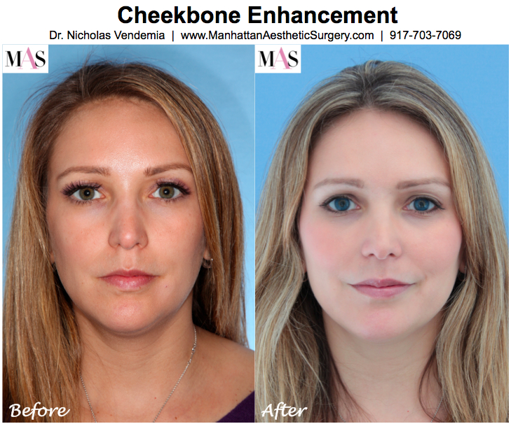 The Top 4 Ways to Enhance Your Cheekbones! | Injectable Specialist ...