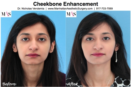 Cheekbone Enhancement by New York Plastic Surgeon Dr Nicholas Vendemia of MAS Manhattan Aesthetic Surgery, cheekbone augmentation, fillers for cheeks, Juvederm, Restylane, Radiesse, Sculptra