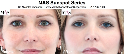laser for sun spots, laser for sun damage, IPL, Intense pulsed light, IPL by NYC Plastic Surgeon Dr Nicholas Vendemia of MAS Manhattan Aesthetic Surgery