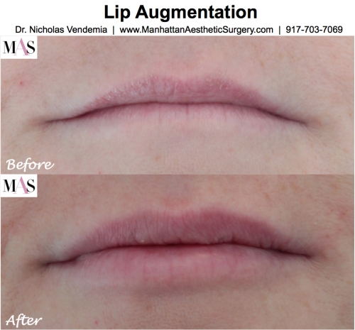 Lip enhancement by New York Plastic Surgeon Dr Nicholas Vendemia of MAS Manhattan Aesthetic Surgery, Juvederm for fuller lips, Restylane for fuller lips,