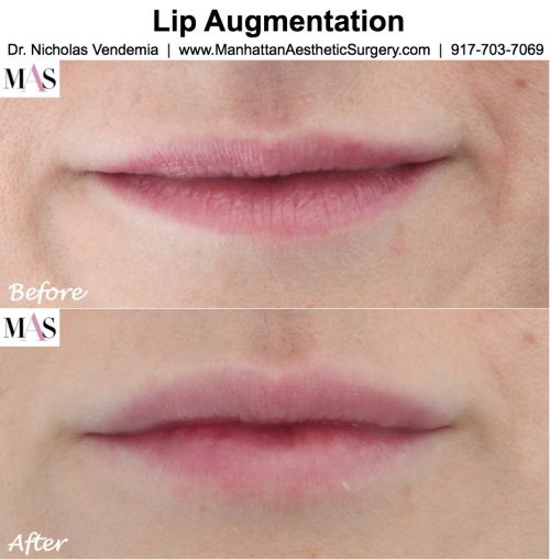 Lip Augmentation by New York Plastic Surgeon Dr Nicholas Vendemia of MAS Manhattan Aesthetic Surgery, Juvederm for fuller lips, Restylane for fuller lips,