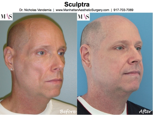 Sculptra by Plastic Surgeon NYC Nicholas Vendemia MD of MAS