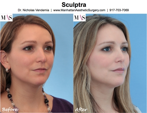Sculptra by Plastic Surgery New York Dr Nicholas Vendemia of MAS