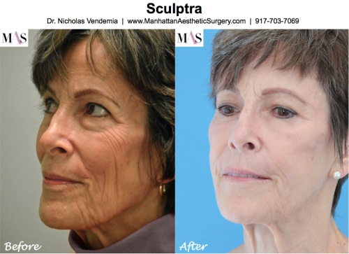 Sculptra by Plastic Surgeon Manhattan Dr Nicholas Vendemia of MAS