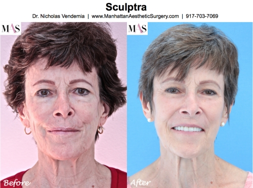 Sculptra by Plastic Surgery doctor Nicholas Vendemia of MAS