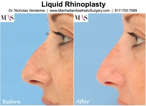 liquid rhinoplasty nonsurgical nosejob